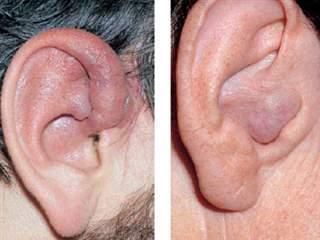 تومور گوش؛ علائم، علل و درمان